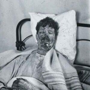 کشنده ترین بیماری های دنیا